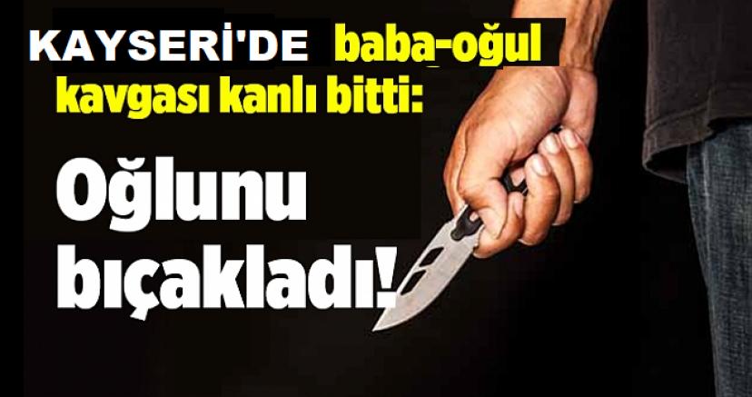Kayseri'de oğlunu bıçakla yaralayan baba gözaltına alındı